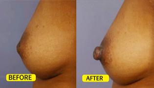 Nipple Augmentation/ Boosting