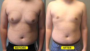 Gynacomastia Reduction