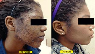 Acne (pimples) Treatment
